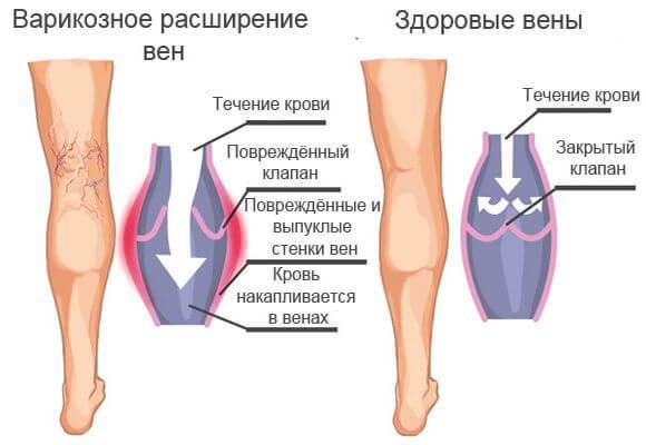 варикоз и здоровые вены ног