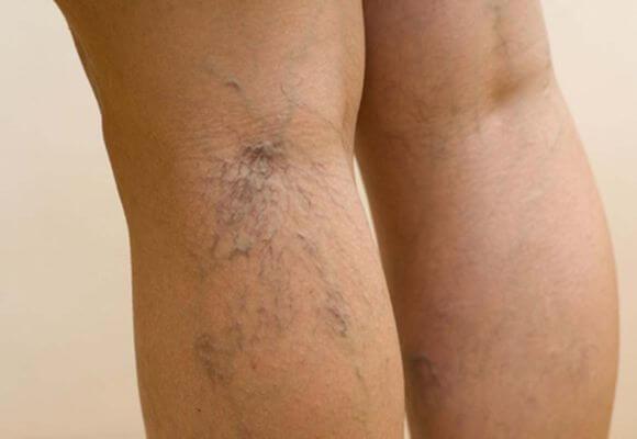 варикозная сетка на ноге