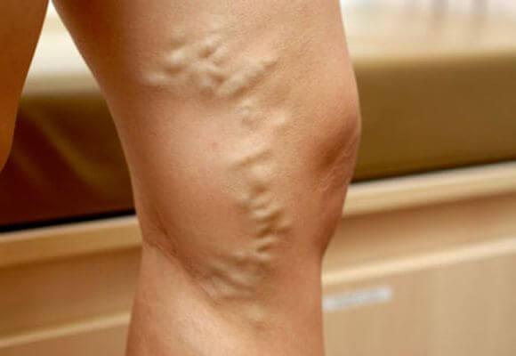 проявление варикоза на ноге