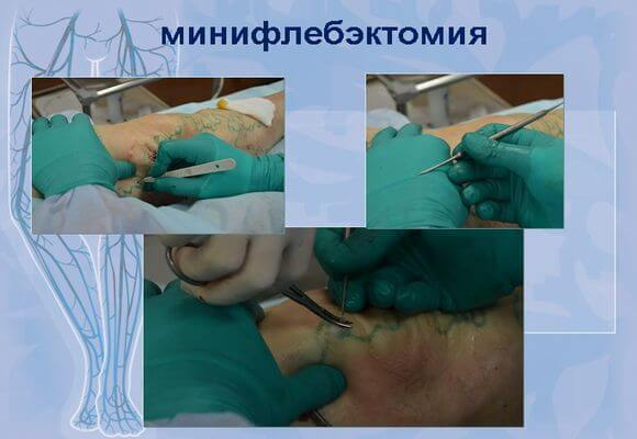 показания к проведению операции