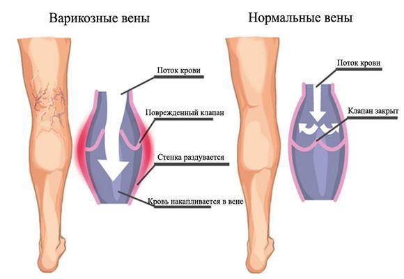 Варикозные и нормальные вены
