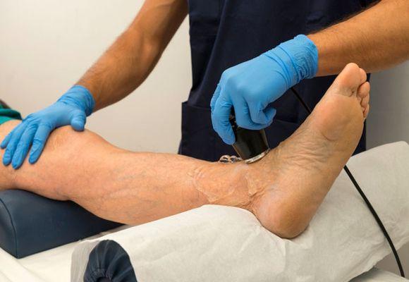 Ультразвуковое исследование вен на ногах