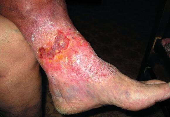варикозная экзема на ноге