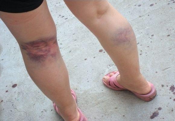 Последствия варикозного недуга