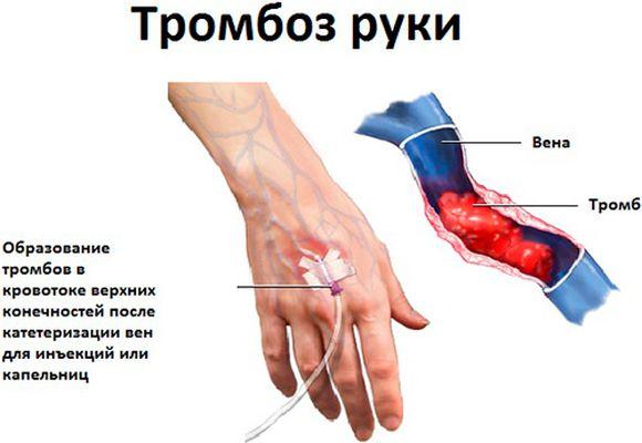 Тромбоз руки