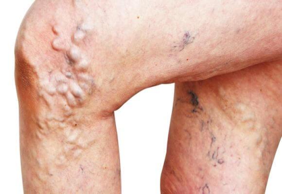 фото варикоза на ногах