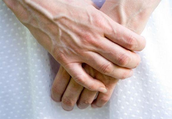 Варикозный недуг рук