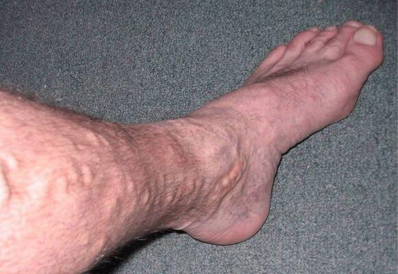 Узлы на венах ног при варикозном заболевании