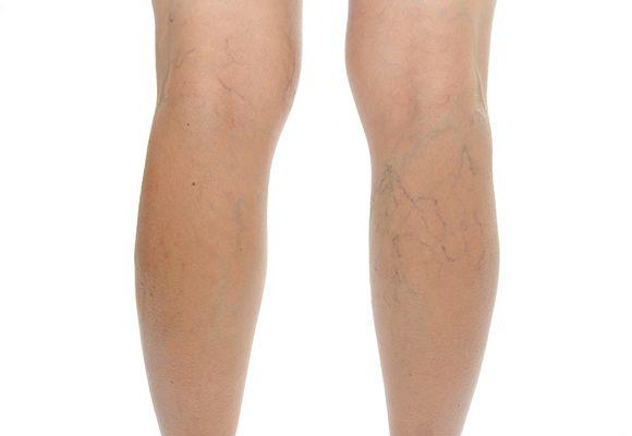 Варикозная болезнь вен ног