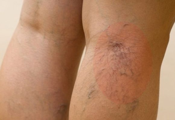 Варикозное заболевание нижних конечностей