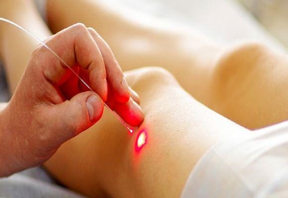 Лазерное лечение варикозного недуга