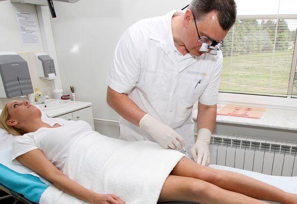 Склеротерапия вен при помощи пены