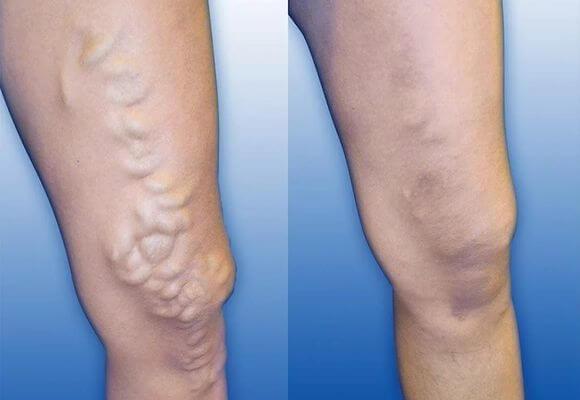 воспаленные вены на ногах