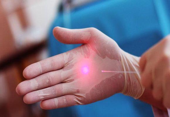 Лазер при варикозном недуге