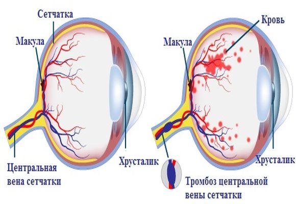 Центральная вена сетчатки