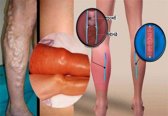 Кровяной сгусток в ноге