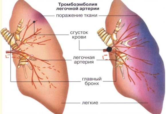 Закупорка лёгочной артерии