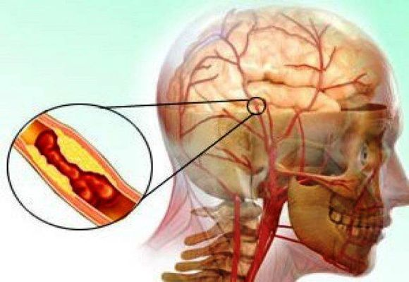 Закупорка головного мозга