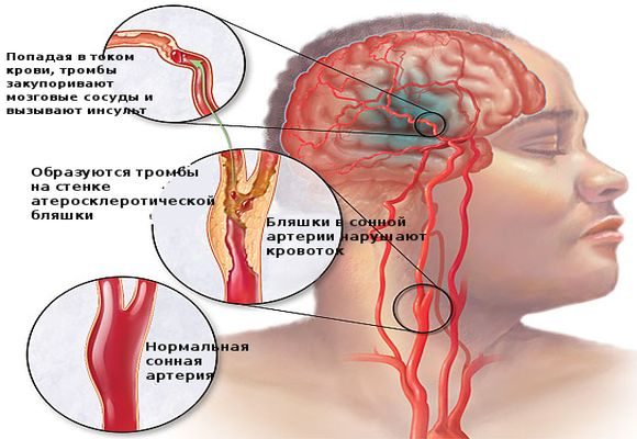Тромболитическая терапия при инсульте