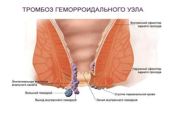 схема заболевания