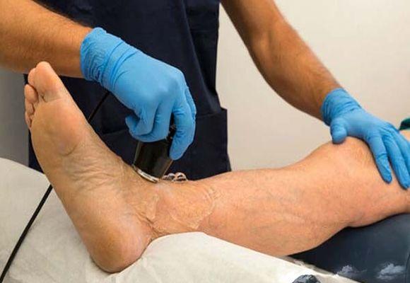 Ультразвуковое исследование при тромбозе