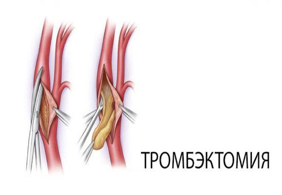 Тромбэктомия