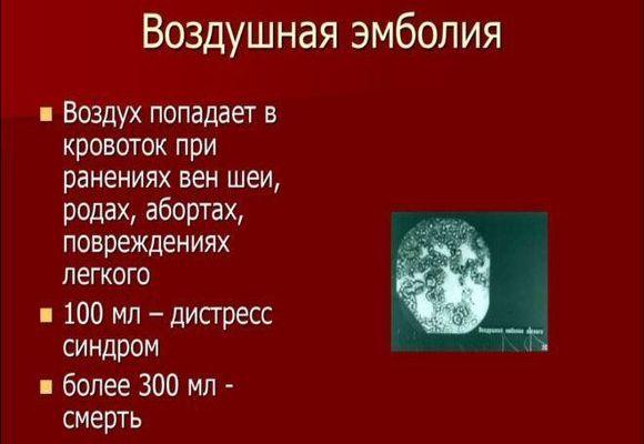 Эмболия
