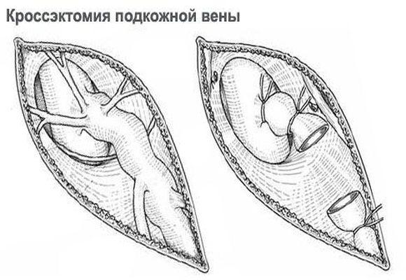 Кроссэктомия