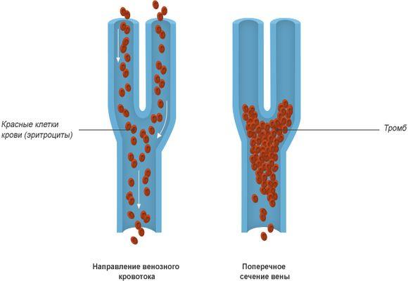 Схема венозного тромбоза