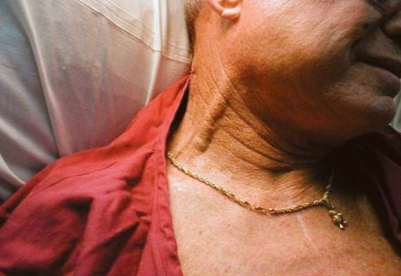 Мужчина с тромбообразованием на шее