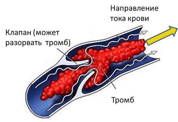 Тромбоз
