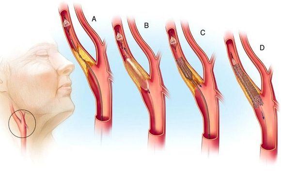 Тромбообразование сонной артерии