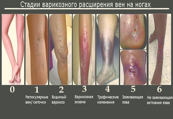 Как лечить в домашних условиях грибок на ногтях стопы