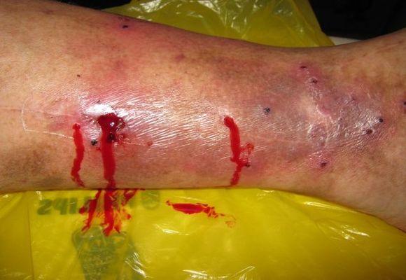 Варикозное кровотечение