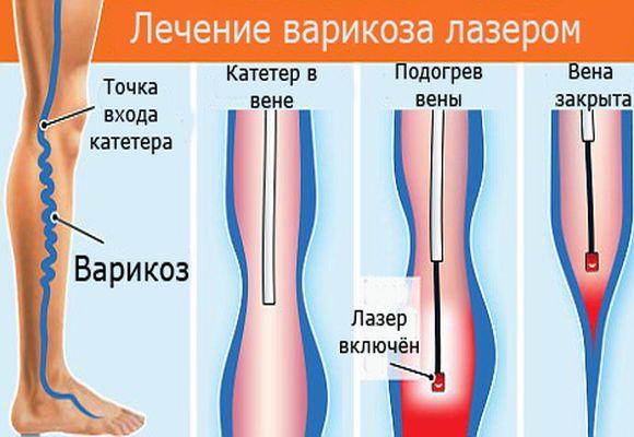 Лечение варикоза нижних конечностей лазером