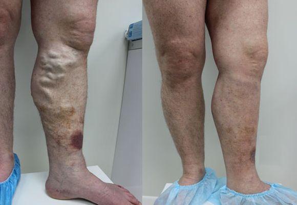 Варикозное расширение вен на ногах симптомы осложнения thumbnail
